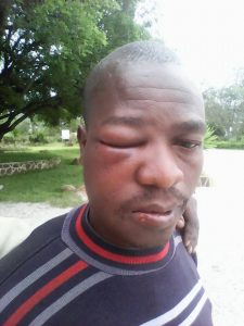Heal Zimbabwe expresses concern over the upsurge in politically motivated violence.